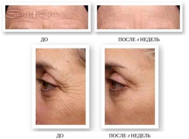 deistvie-retinola-1.jpg