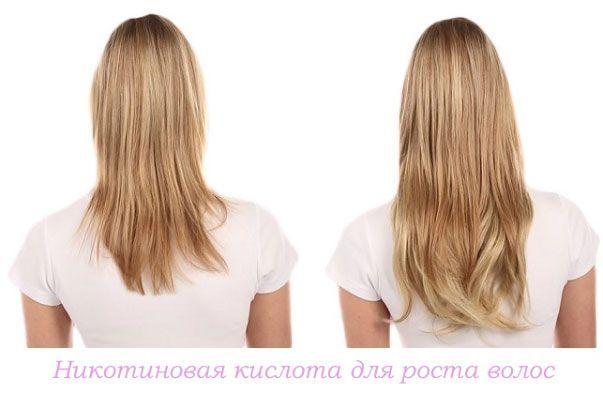 nikotinovaya-kislota-dlya-rosta-volos.jpg