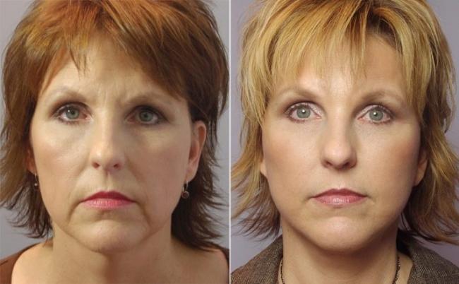 plasticheskij-massazh-lica-tehnika-i-opisanie-procedury-2.jpg