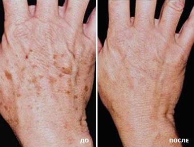 jetpeel-hands.jpg