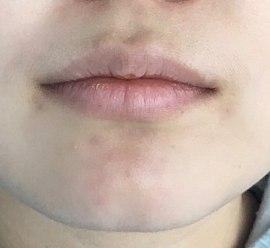 Азиатские губы