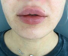 Контурная плстика губ